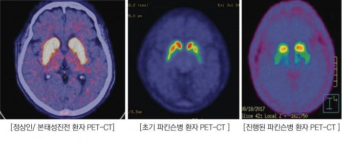 뇌.jpg