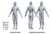 데이터 마이닝 기법으로 통증조절 위한 침 치료 선혈 원리 밝혀내