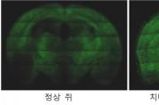 홍잠의 알츠하이머 치매 예방 효과 확인