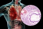 중국 우한시 폐렴환자 27명 집단발생