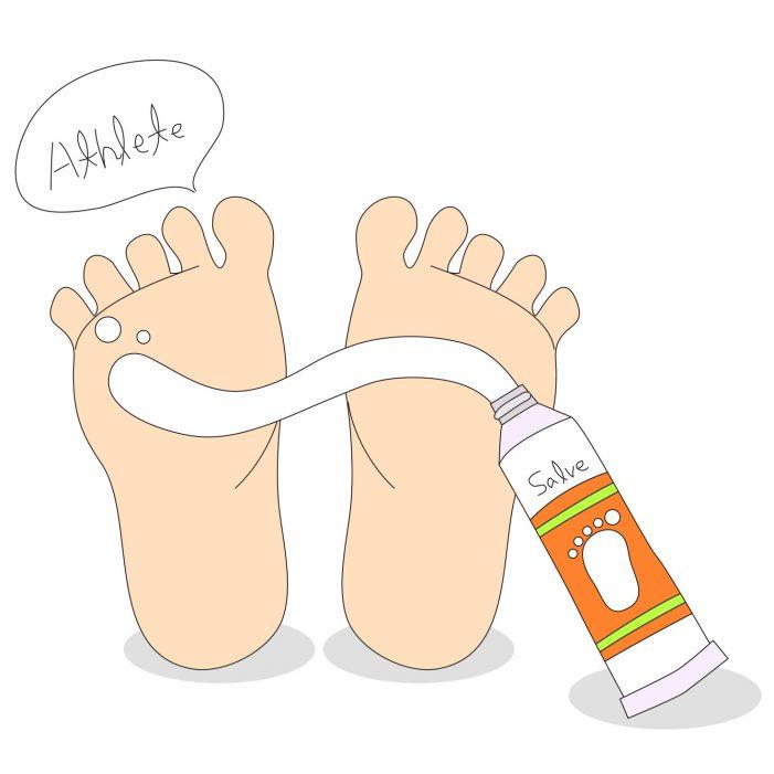 무덥고 습한 여름 질병 '무좀', 연 평균 250만명 앓는다