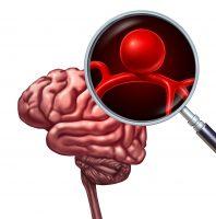 한의치료, 초기 뇌졸중 후유증 억제에 '효과'