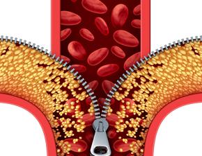 성인 3명중 1명 이상지질혈증 환자…한의학적 치료 방법은?