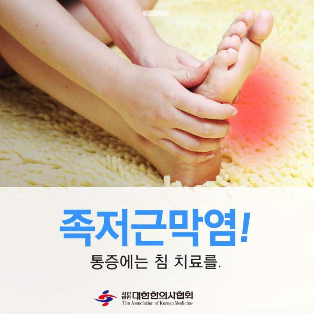 족저근막염-1