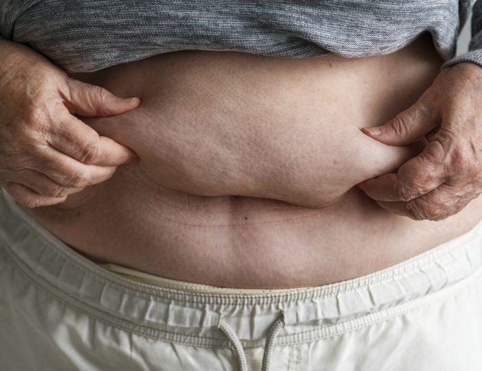 비만 여성 노인, 대사증후군 위험 6배