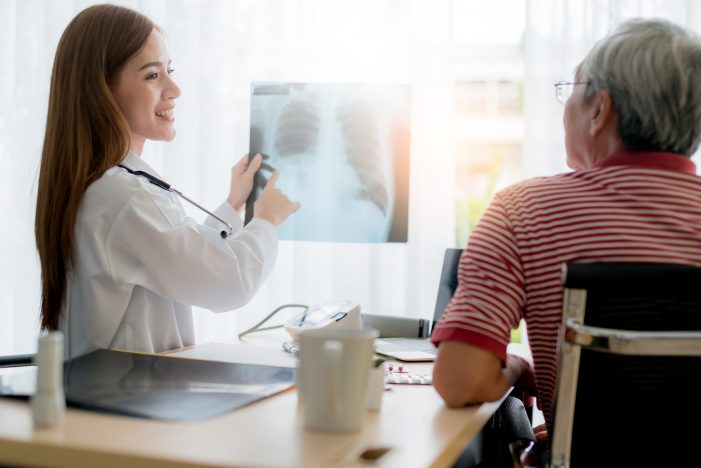 오는 7월부터 폐암 검진 추가 개정안 입법예고