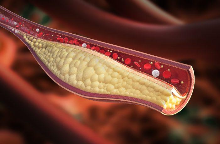 중년 남성, 밀가루음식 자주 먹으면 혈관건강 지표 악화