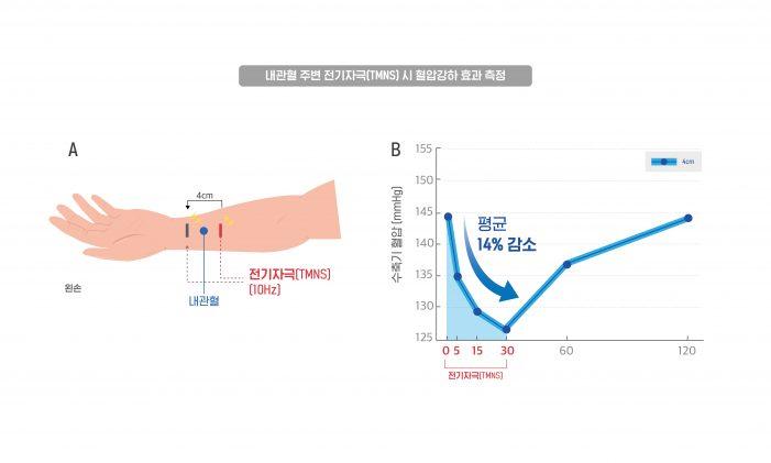 혈자리 전기 자극 통한 혈압 강하 효과 '규명'
